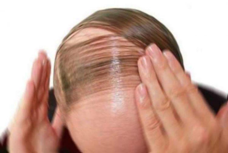Caduta dei capelli  shampoo e prodotti per combatterla  313a484655b2